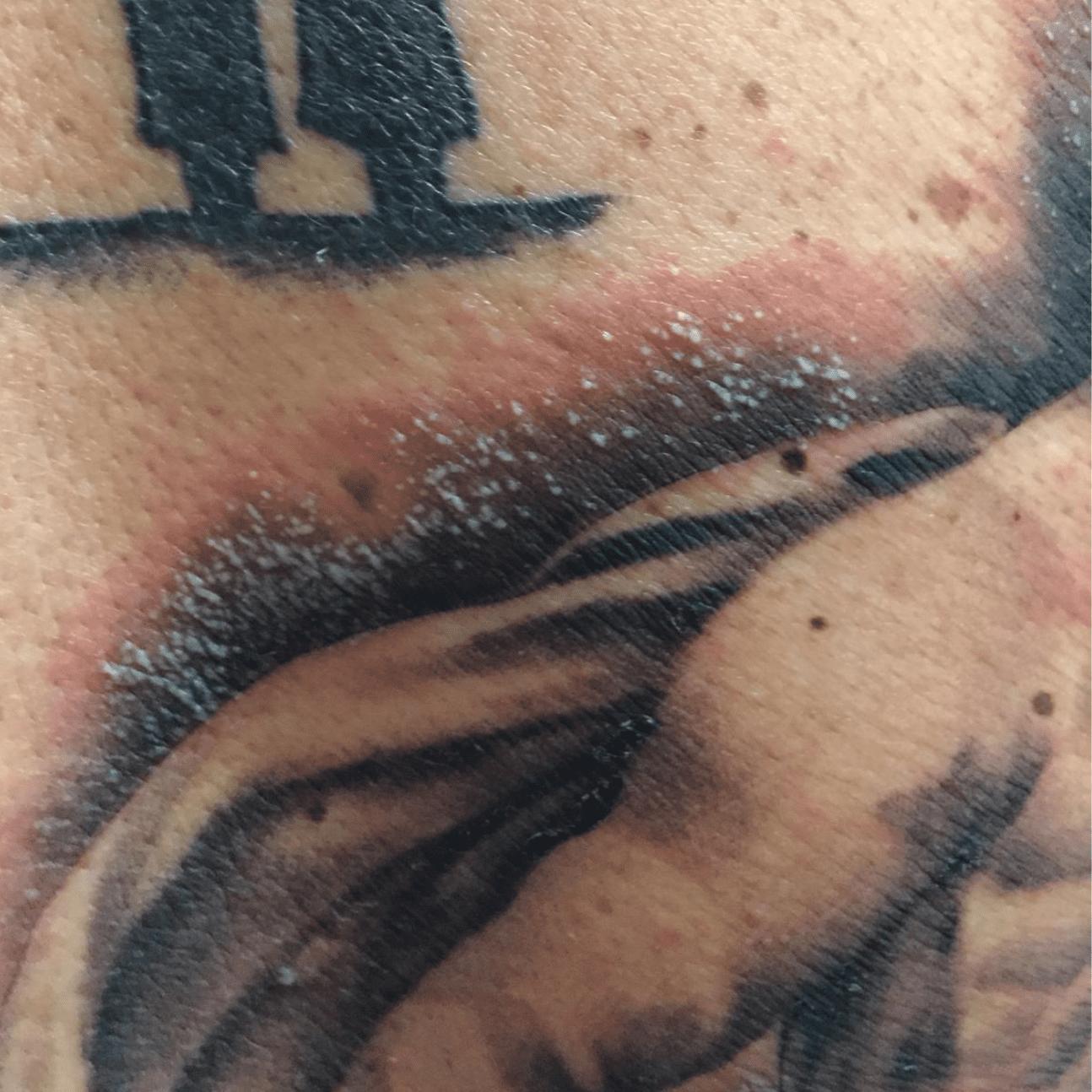 Esempio di infezione da tatuaggio