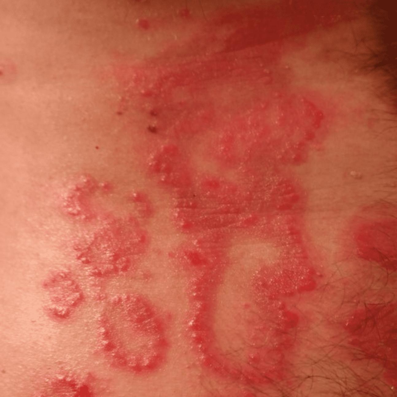 sfogo sulla pelle dovuto ad una infezione del tatuaggio