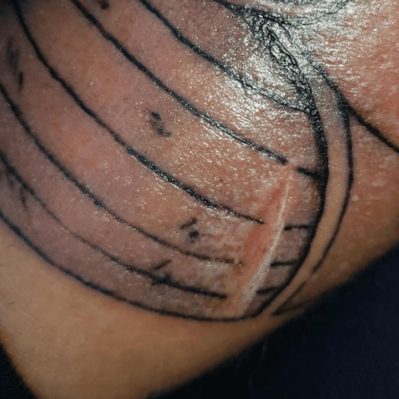 Sei allergico ai tatuaggi? Ecco come scoprirlo